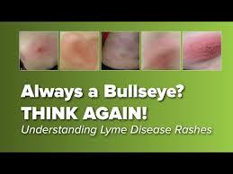 think the lyme disease rash is always a