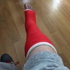 My Fractured Year A Broken Ankle Diary Darryl Chamberlain Medium