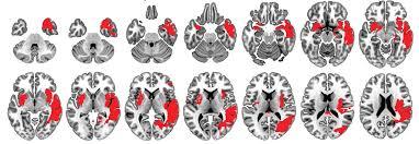 """Résultat de recherche d'images pour """"cerveau plasticité neuronale"""""""