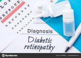 Lying Eye Chart Ophthalmology Diagnosis Diabetic Retinopathy Snellen Eye