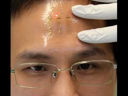 Image result for microchip implant hand or forehead