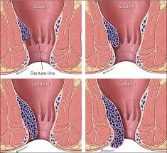 Hemorrhoid Size Chart Hemorrhoids Diagnosis And Treatment Options American