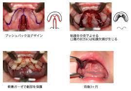 粘膜 下 口蓋 裂