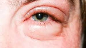 swollen eyes from crying remedy red sore puffy eyes after crying pictures fast treatment