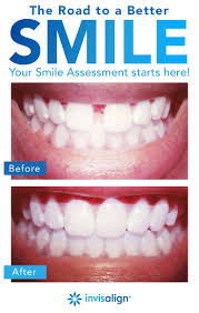 full size of teeth bleaching straight teeth stunning straighten teeth without braces newsletter spring charismatic