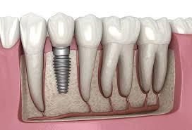 Dental implant - Wikipedia