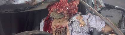 Head Obliterated When Car and Truck Collide |