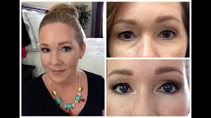 juvederm filler for under eyes w before after pictures