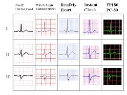 Ekg Lead Placement Chart 1 Lead To 12 Lead And Exercise Ecg