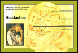 cluster headache location chart headache vitaminutrisi