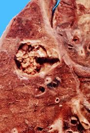 Znalezione obrazy dla zapytania aspergillus w płucach