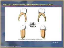 Maxillary Second Molar Maxillary Second Molar Under Fontanacountryinn Com