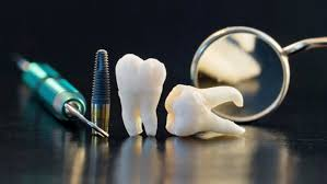 Wisdom Teeth Removal in Jacksonville
