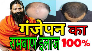 hair fall and alopecia ayurvedic treatment for male and female by baba ramdev