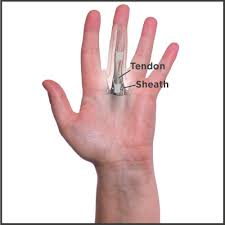 Trigger Finger Placement Chart Trigger Finger Causes Your Tendon To Get Caught In A Sheath