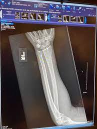 Echo Park抗议者指控LAPD军官用警棍罢工打破了他的手臂-西梅