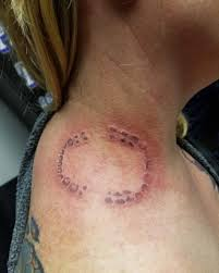 Womans Bizarre Tattoo Of A Bite Mark Is Ridiculed For Looking Like