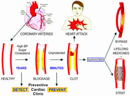 Heart Flow Chart Safe Health Heart Centre