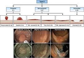 endoscopic removal of colorectal