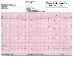 Ecg Chart Examples Eheart Introduction To Ecg Ekg