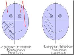 upper vs lower motor neuron lesion aphasia neurology nerve motor neuron
