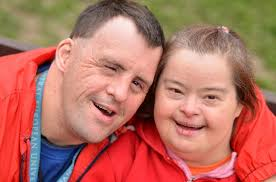 Image result for down syndrome symptoms pictures