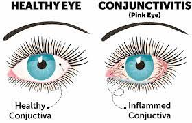 conjunctivitis pink eye causes and