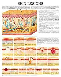 Skin Lesions E Chart Full Illustrated