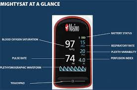 Perfusion Index Chart Masimo Mightysat More Than A Pulseox Aviation Consumer