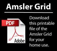Amsler Grid Carmelina Gordon M D