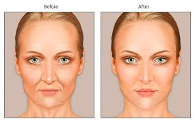 Image result for fat injection for face
