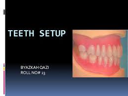 Teeth Setting Teeth Setup