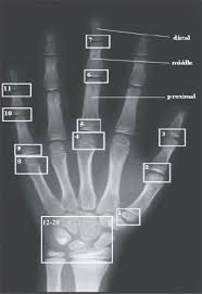 Bone Age Wrist Chart Article Fulle Text