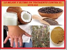 Resultado de imagen para Remedios naturales para el vitiligo o leucoderma