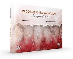 Recobrimento Radicular - Desafiando Conceitos: Sergio Kahn ...