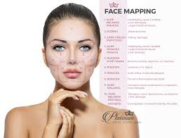 Face Mapping To Solve Skin Issues Platinum Skin Care
