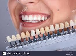 Denture Tooth Shades Dima Print Denture Base Material 1kg Bottle