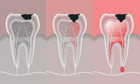 Root canals don't have a great reputation among dental patients. Root Canal Cost 2021 Omega Dental Houston Tx