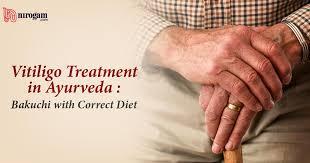 Vitiligo Treatment In Ayurveda Ayurvedic Home Remedies