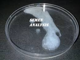 semen analysis sperm count