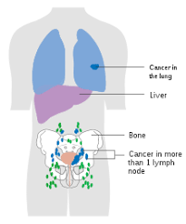 Bladder Cancer Wikipedia