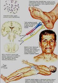 tetanus toxin natural treatment of tetanus with iodine