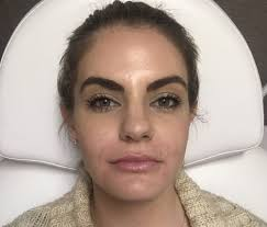 how juvederm lip filler changed my life