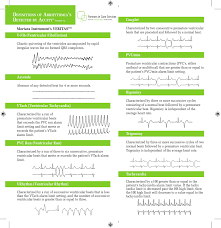 Types Of Arrhythmia Chart Definitions Of Arrhythmias Detected By Acuity Version 7 X A