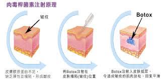 """BOTOX肉毒""的图片搜索结果"