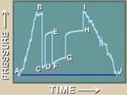 Dst Pressure Chart The Initial Phase Of The Test Is