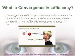 What Is Convergence What Is Convergence Insufficiency