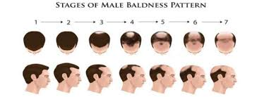 Male Pattern Boldness Awesome Early Warning Signs Of Male Pattern Baldness The Idle Man