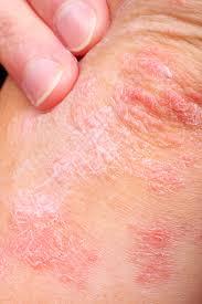 Is Eczema Causing My Child's Rash? - Hamilton Pediatrics ...