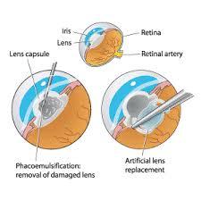 Cataract Surgery Faq Canada Com